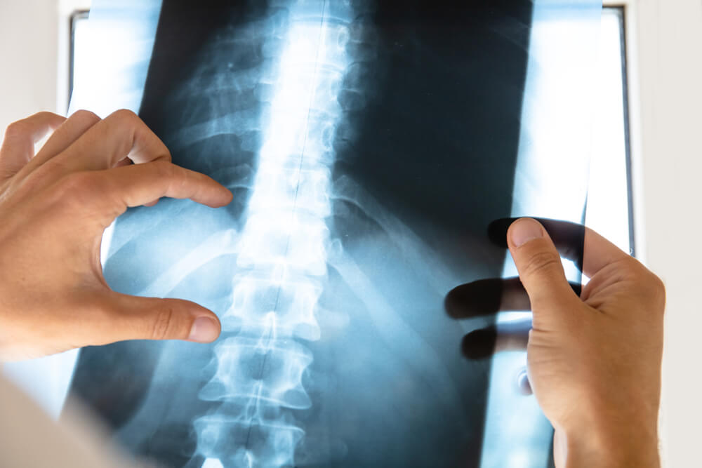 Causes Of Accidental Spinal Injuries